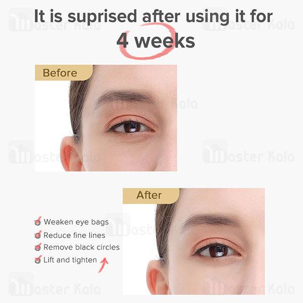 ماساژور صورت و دور چشم شیائومی Xiaomi InFace MS5000 Eye Care Tools